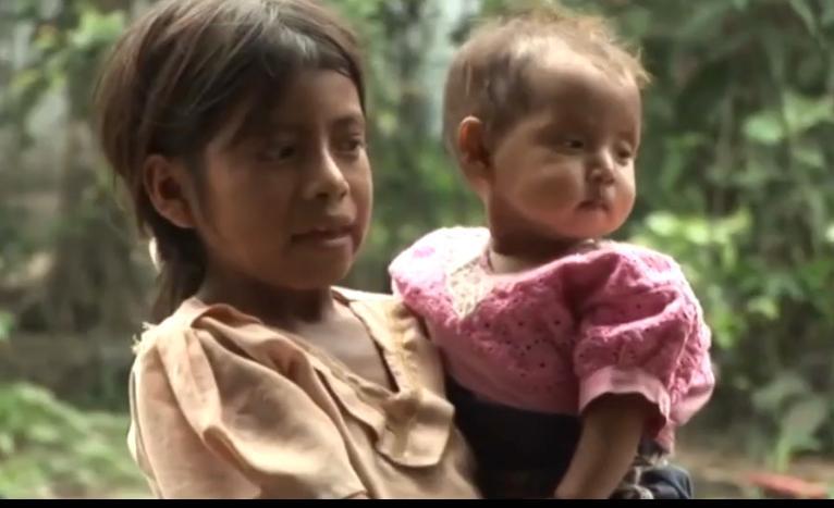 Preocupación por casos de desnutrición en Guatemala imagen